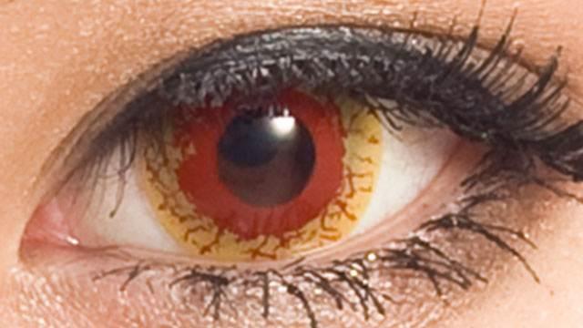 血がにじむ黄ばんだ瞳に